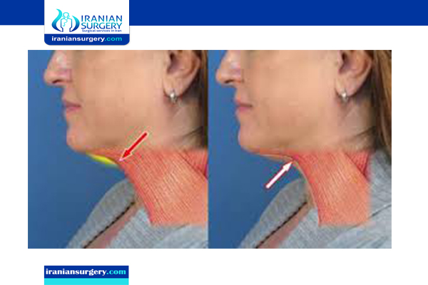 neck lift surgery in iran