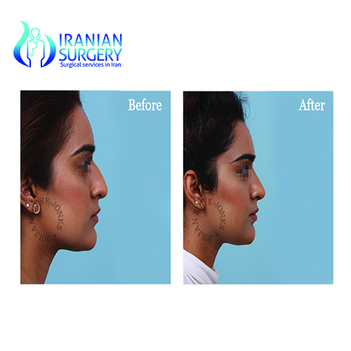 iranian nose job before and after