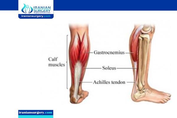 End-to-end achilles tendon repair