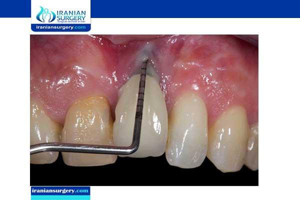 أعراض فشل زراعة الاسنان