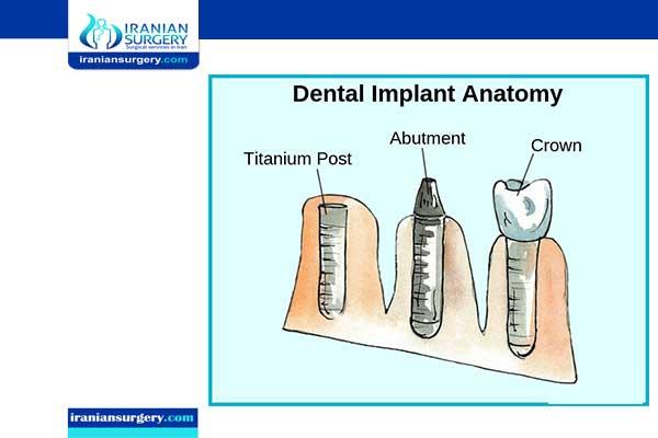 مقارنة تکلفة زراعة الاسنان في ایران مع دول أخري