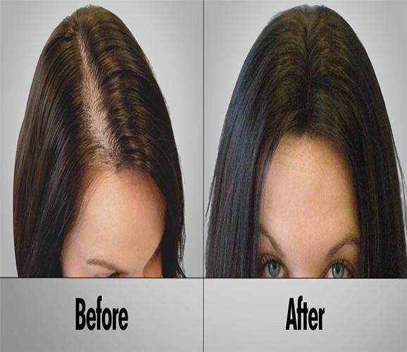کاشت موی زنانه