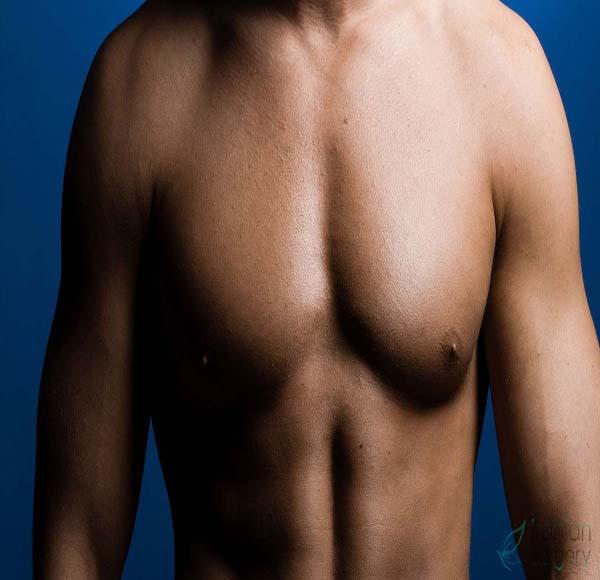 جراحة تضخم الثدي عند الرجال