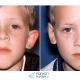 عملية جراحة تصغير الأذن