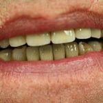 Dental Crown surgery in iran