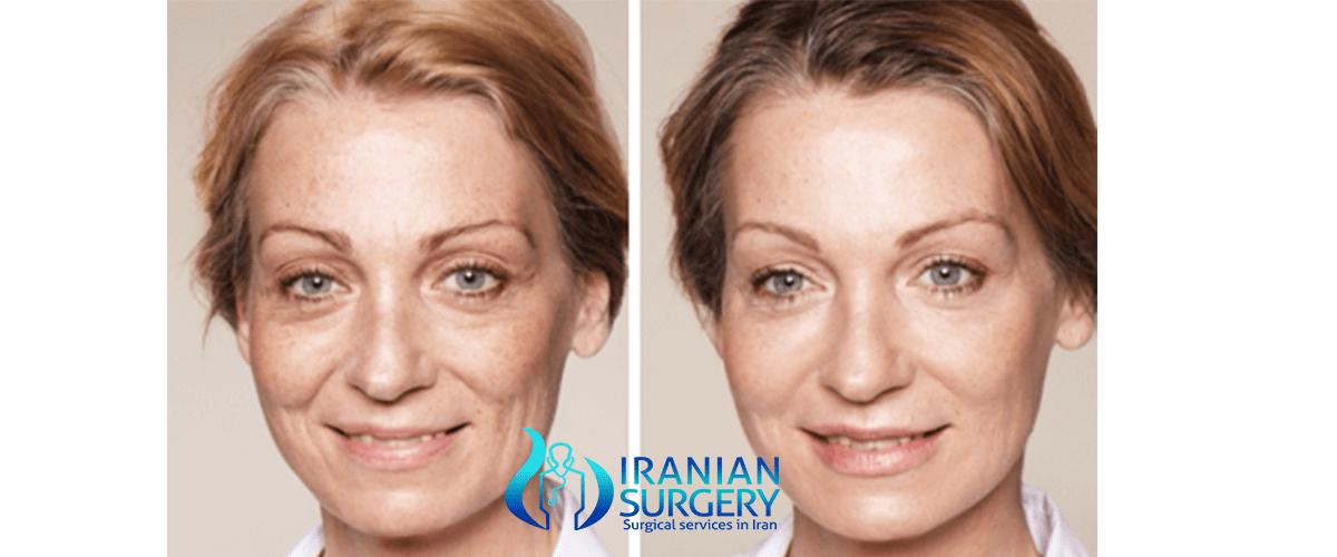 Botoxfiller injections restylaneradiesse