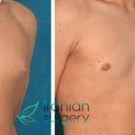 عملیة تصغير الثدي