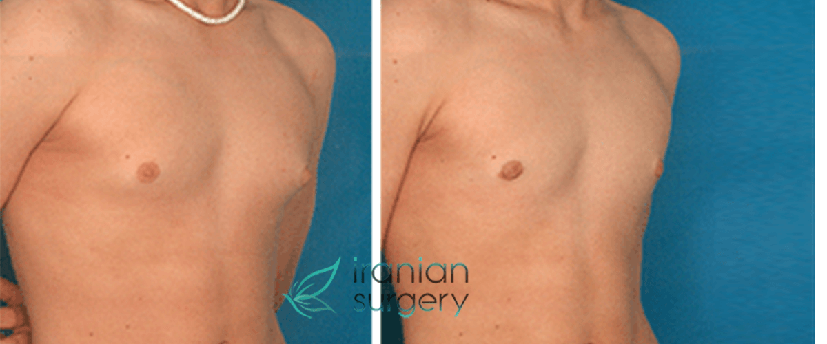 Breast reduction in men with gynecomastia