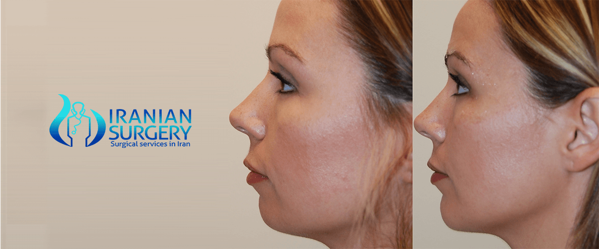 Chin, cheek, or jaw reshaping facial implants