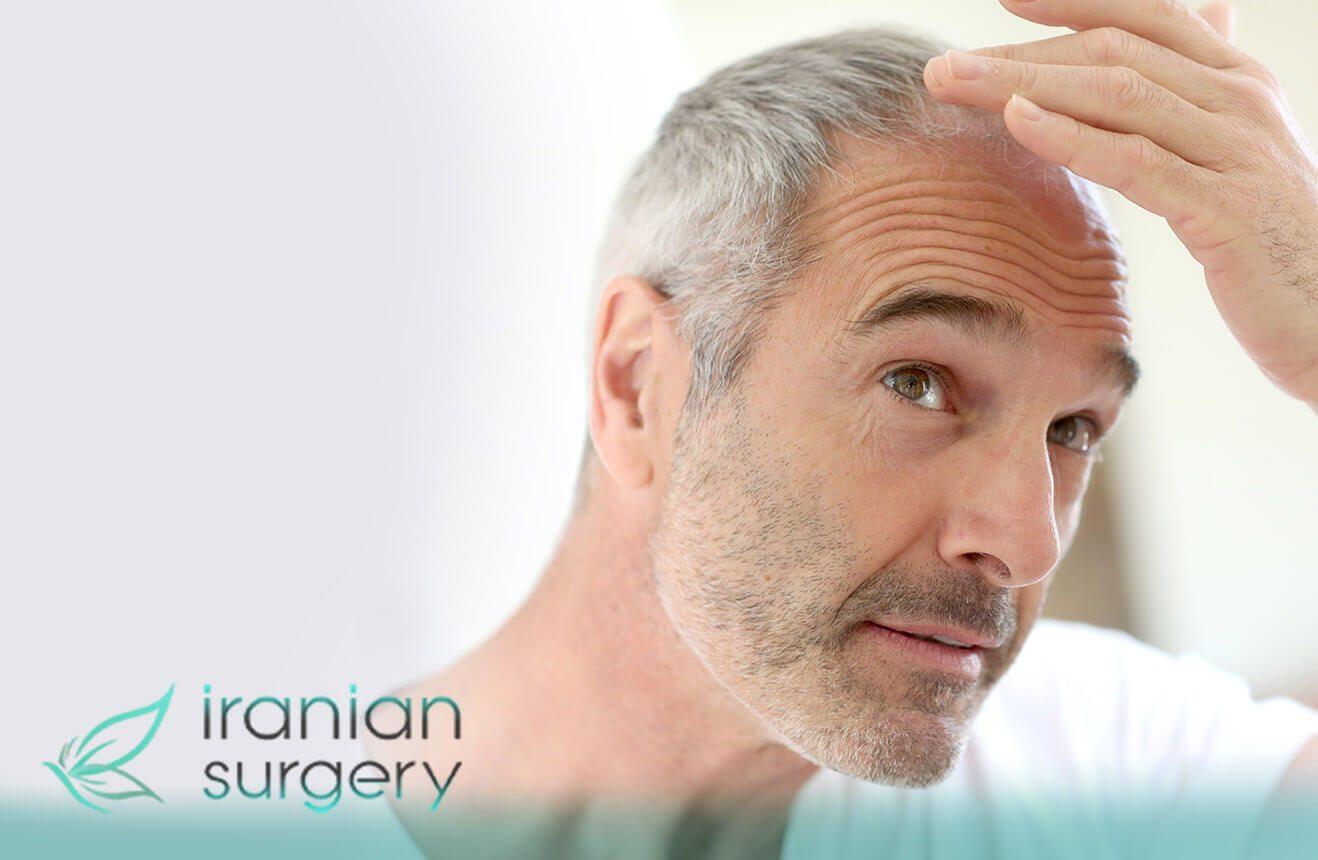 زراعة الشعر في إیران