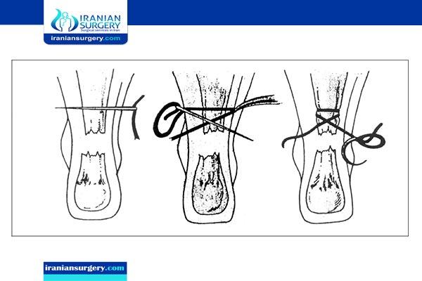 Percutaneous achilles tendon repair
