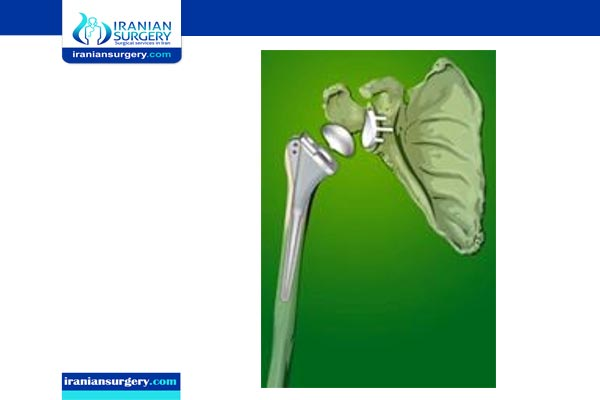shoulder replacement surgery in iran