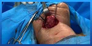 Submandibular Gland Surgery