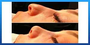rhinoplasty in shiraz