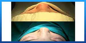 ازالة الجبيرة بعد عملية تجميل الانف
