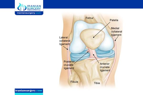 acl surgery cost in iran