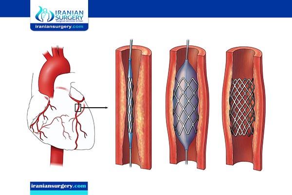 coronary angioplasty in iran