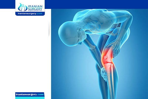 knee replacement surgery cost iran
