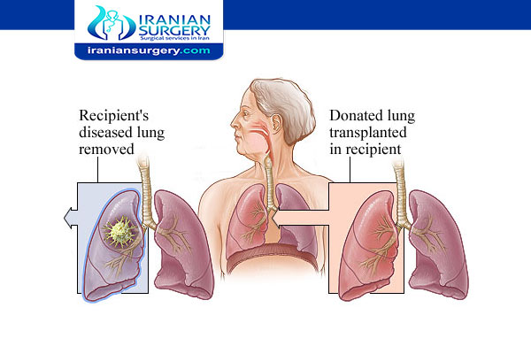A lung transplant
