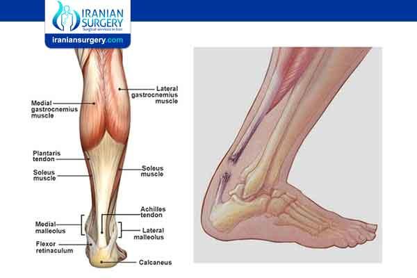 Achilles Tendon Repair Surgery Complications