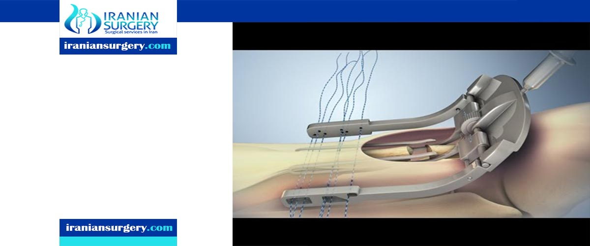 Achilles Tendon Repair Surgery Techniques