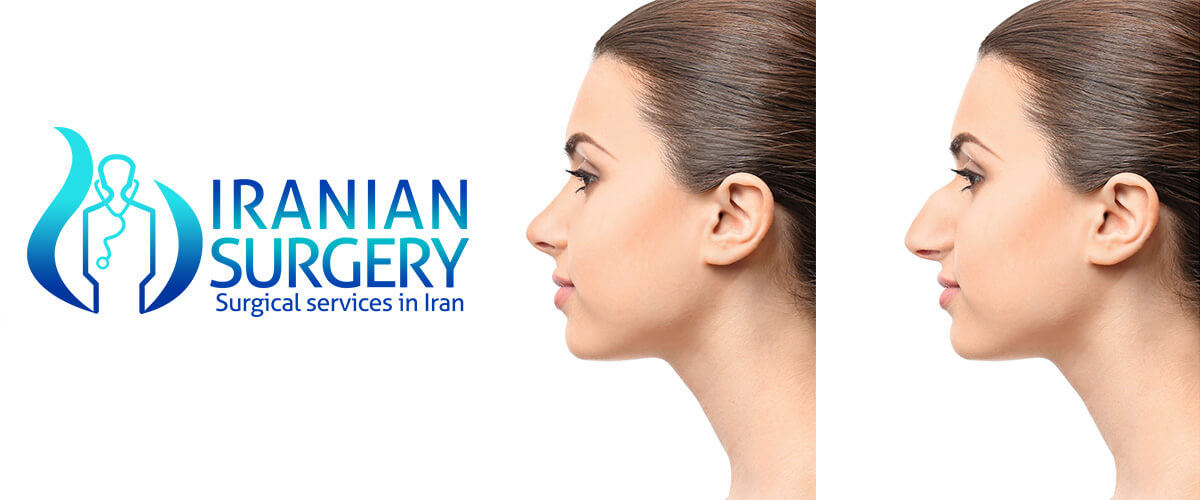 After Rhinoplasty | signs of infection after rhinoplasty| Iranian