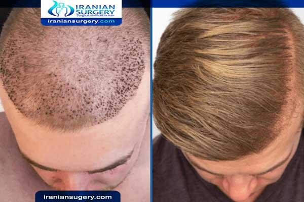 تعليمات ونصائح بعد زراعة الشعر