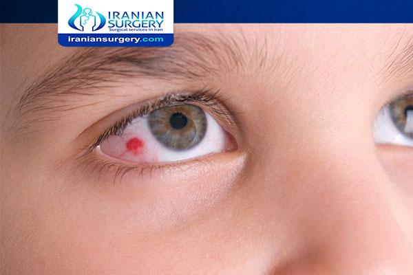 After lasik eye surgery