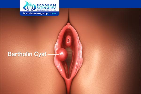Bartholin cyst drainage aftercare