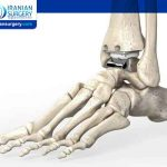 Ankle Replacement Options