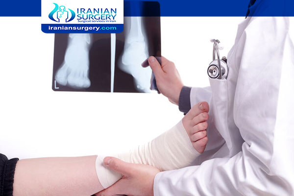 Ankle Replacement Surgery in Iran