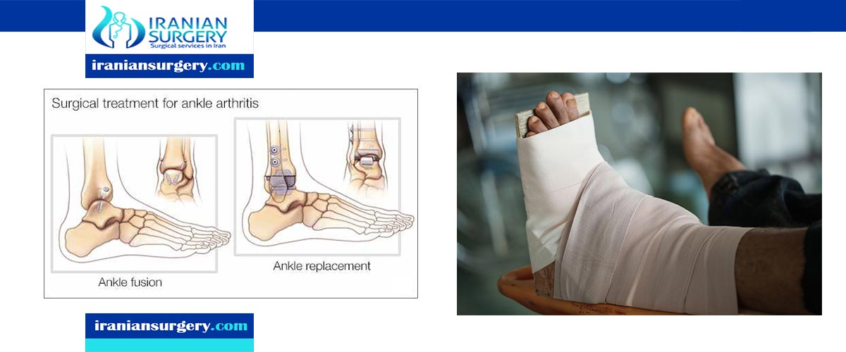 Ankle Replacement VS Ankle Fusion