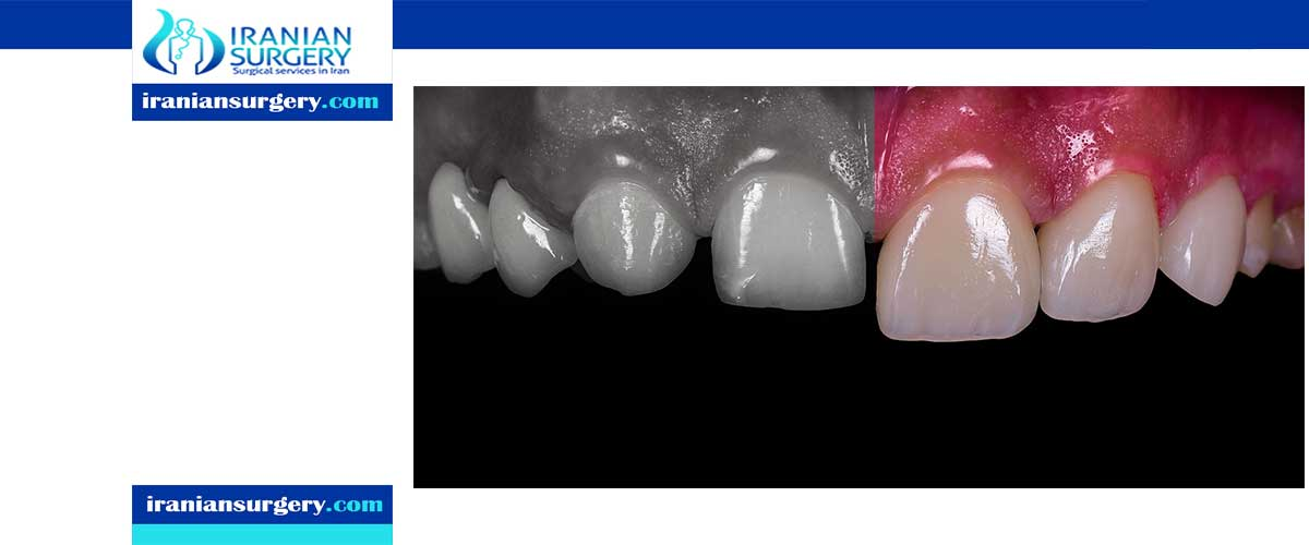 Are composite veneers permanent