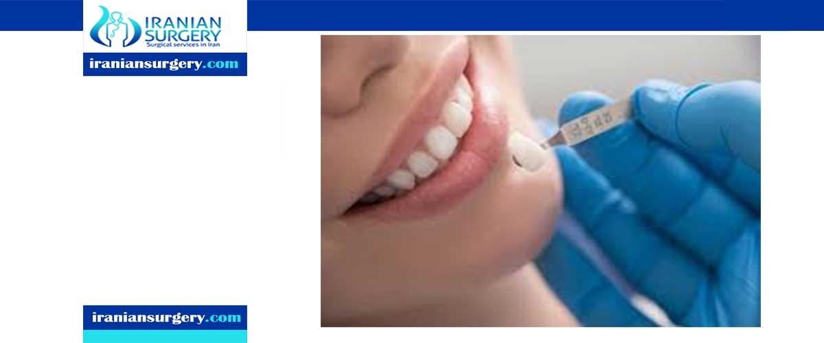 Are dental veneers permanent