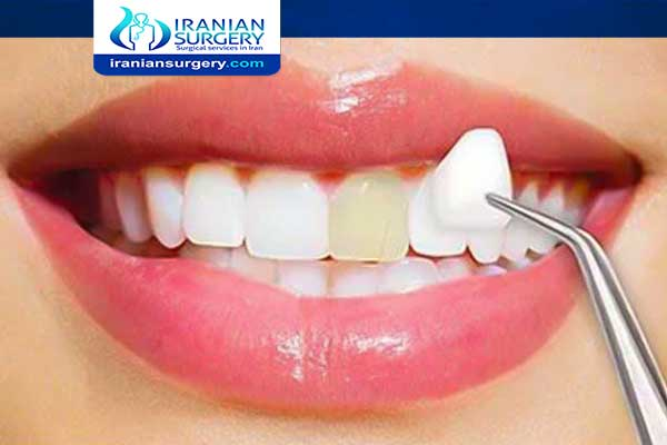 Are veneers permanent or removable