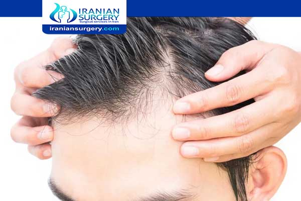 منع تساقط الشعر للرجال منع تساقط الشعر علاج تساقط الشعر عند الرجال من الامام