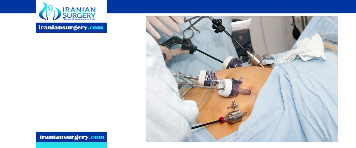 Bariatric surgery process