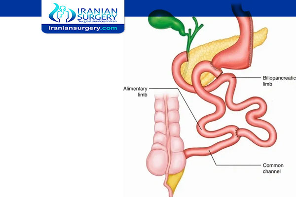 Biliopancreatic Diversion with Duodenal Switch (BPD/DS) Surgery