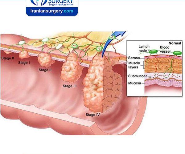 سرطان المثانة المرحلة الرابعة سرطان المثانة في المرحلة الرابعة علاج سرطان المثانة المرحلة الرابعة