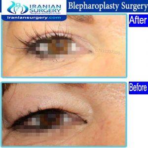 dr Ein abadi Blepharoplasty