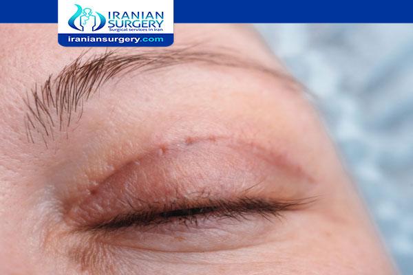 Blepharoplasty in Iran