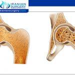 Bone cancer treatment inIran