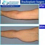 dr Ein abadi Brachioplasty