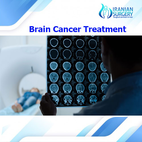 Brain-cancer-treatment500 (2)