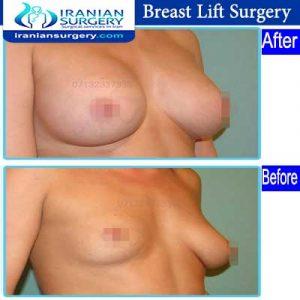 dr Ein abadi Breast lift surgery