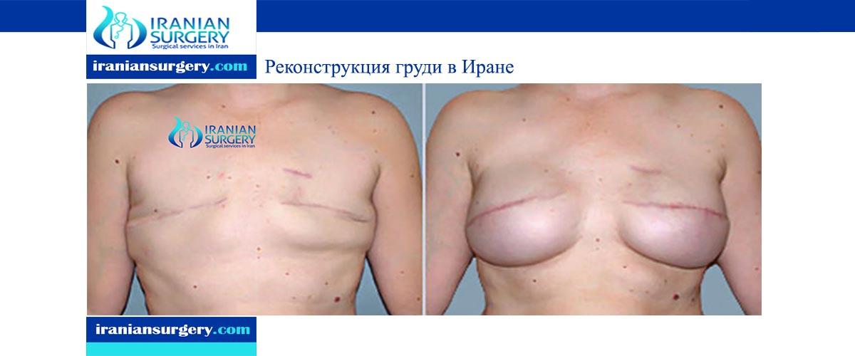 Реконструкция груди в Иране