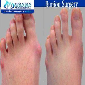 Bunion surgery dr Jafari