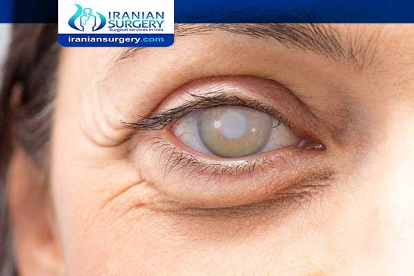 Cataract Surgery Complication