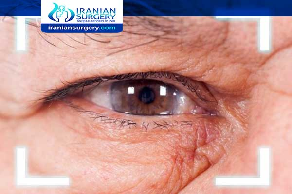 Cataract aftercare