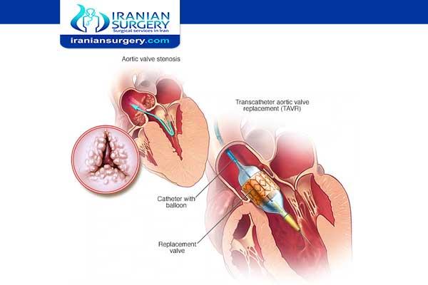 عملیة تبدیل صمام القلب بالقسطرة